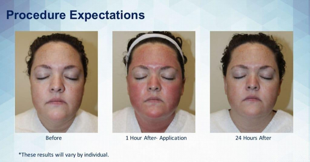 SkinPen Procedure Expecations